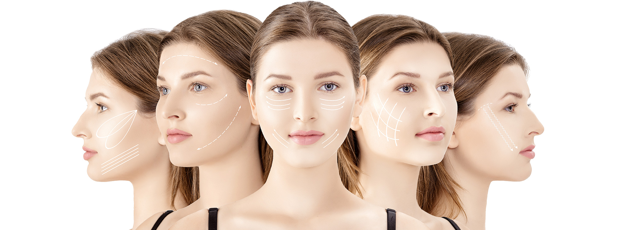 Best-Dermal-Fillers-Experts-in-Toronto