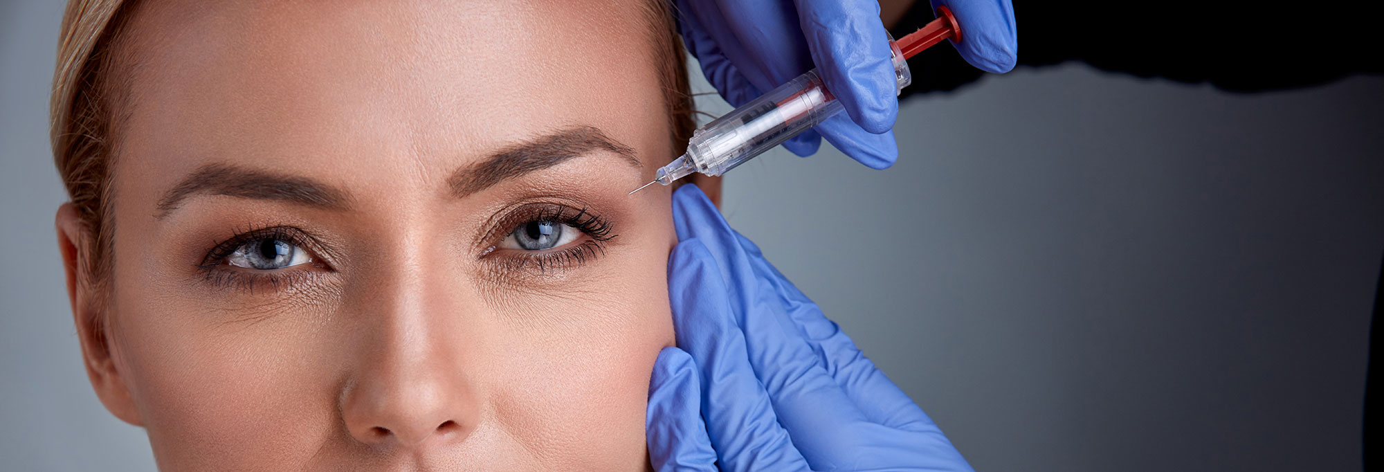 Botox for Crow's Feet