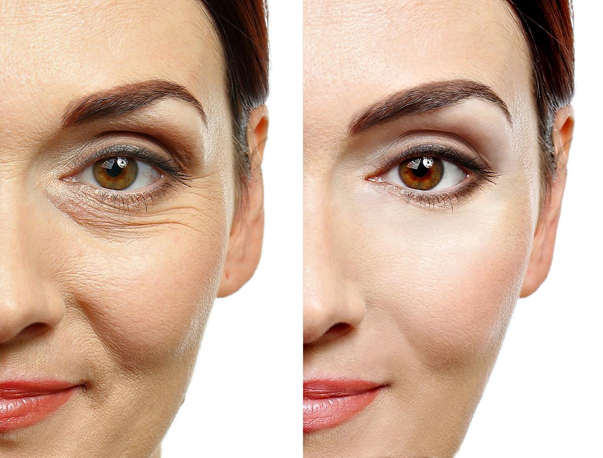 Face-Lift-(Non-surgical-Face-Lift)