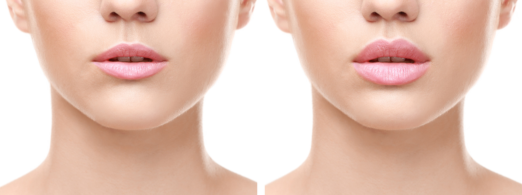 Lips-Augmentation-Experts-in-Toronto