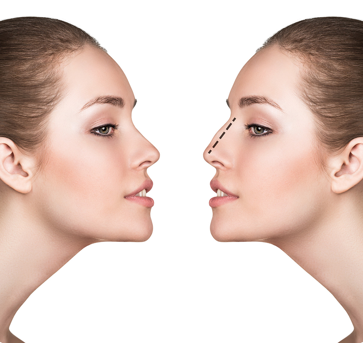 Non-surgical-Nose-Correction