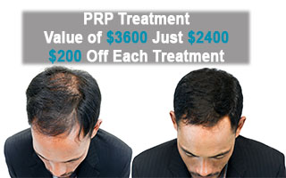 PRP Treatment: Why you should get a Treatment this Winter for Sure!